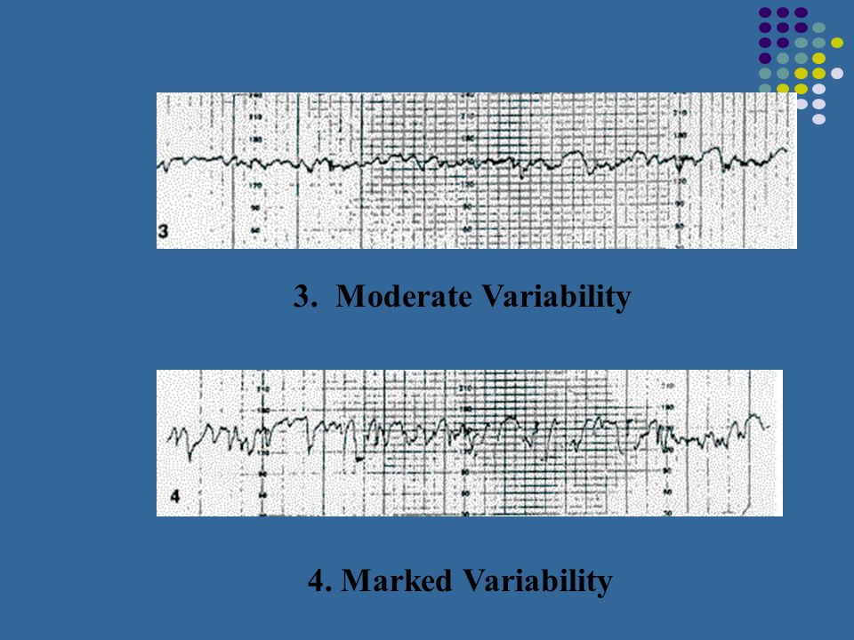 3. Moderate Variability 4. Marked Variability