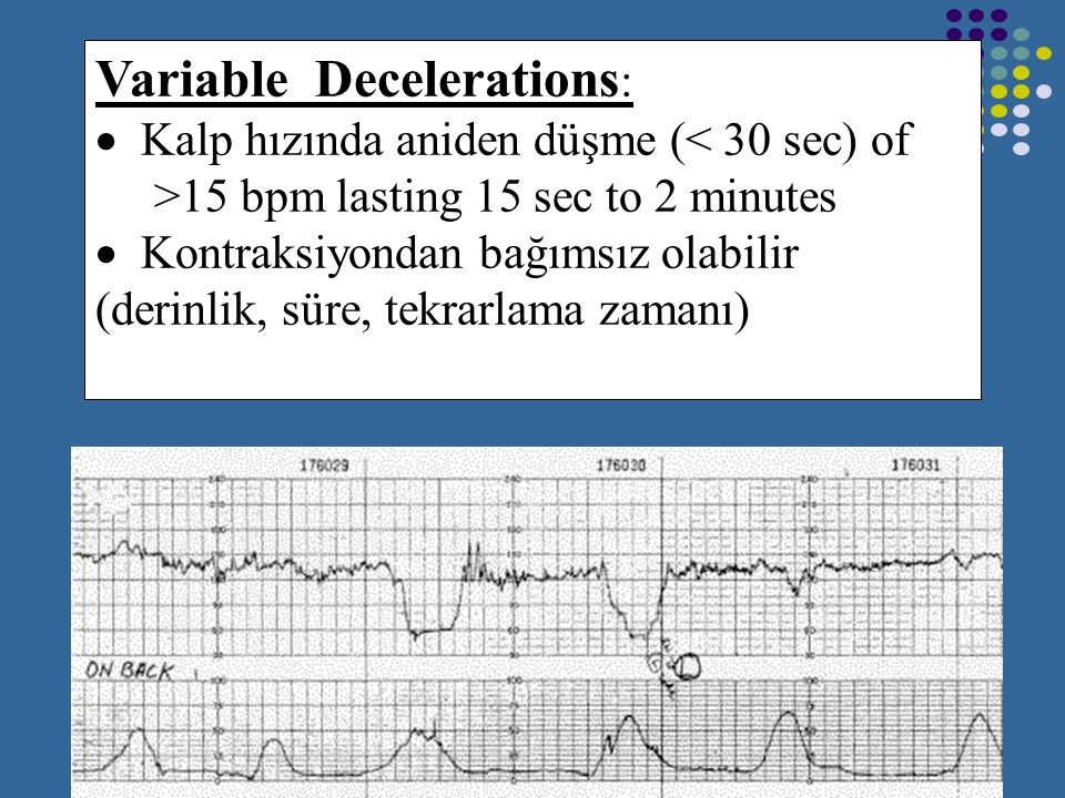 Variable Decelerations: