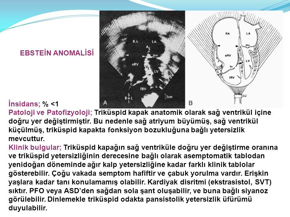 EBSTEİN ANOMALİSİ İnsidans; % <1. Patoloji ve Patofizyoloji; Triküspid kapak anatomik olarak sağ ventrikül içine.