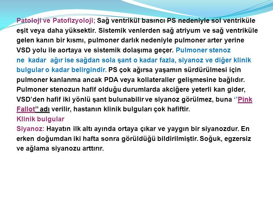 Patoloji ve Patofizyoloji; Sağ ventrikül basıncı PS nedeniyle sol ventriküle eşit veya daha yüksektir.