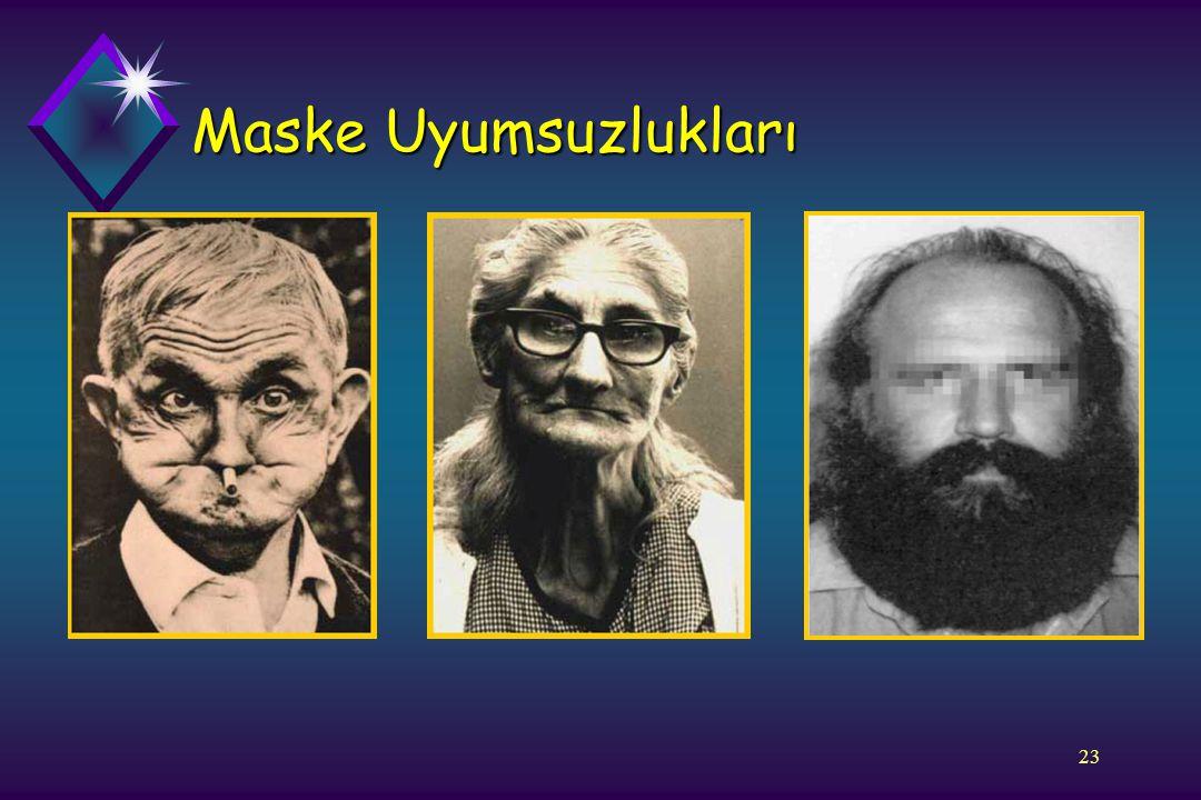 Maske Uyumsuzlukları