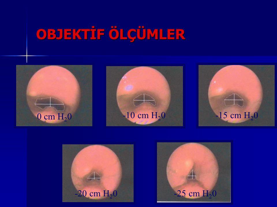 OBJEKTİF ÖLÇÜMLER 0 cm H20 -10 cm H20 -15 cm H20 -20 cm H20 -25 cm H20