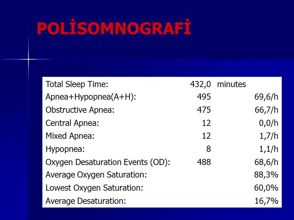 POLİSOMNOGRAFİ Total Sleep Time: 432,0 minutes Apnea+Hypopnea(A+H):