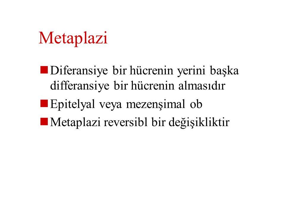 Metaplazi Diferansiye bir hücrenin yerini başka differansiye bir hücrenin almasıdır. Epitelyal veya mezenşimal ob.