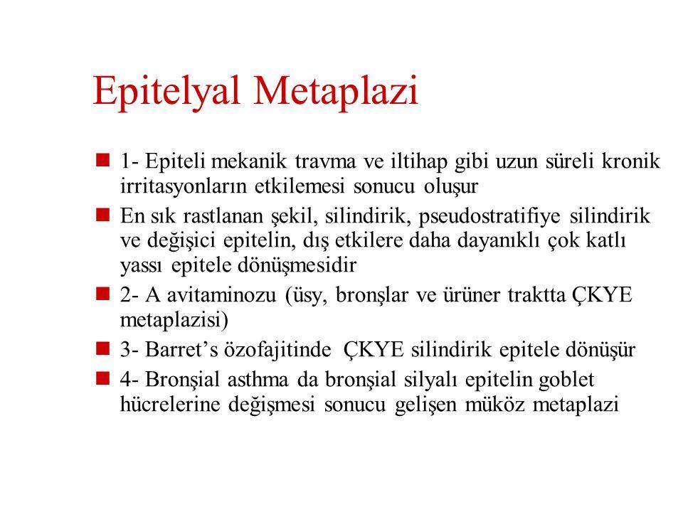Epitelyal Metaplazi 1- Epiteli mekanik travma ve iltihap gibi uzun süreli kronik irritasyonların etkilemesi sonucu oluşur.