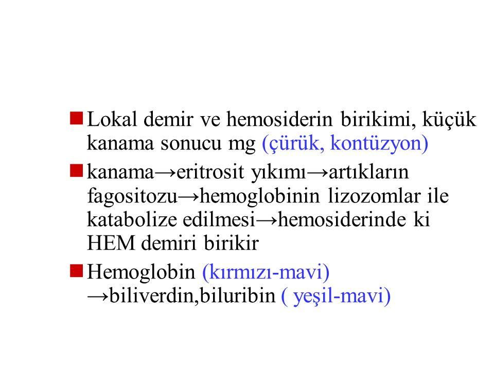 Lokal demir ve hemosiderin birikimi, küçük kanama sonucu mg (çürük, kontüzyon)
