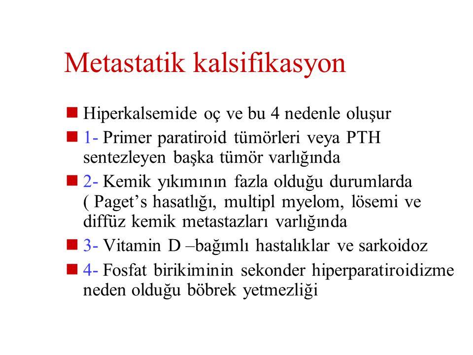 Metastatik kalsifikasyon