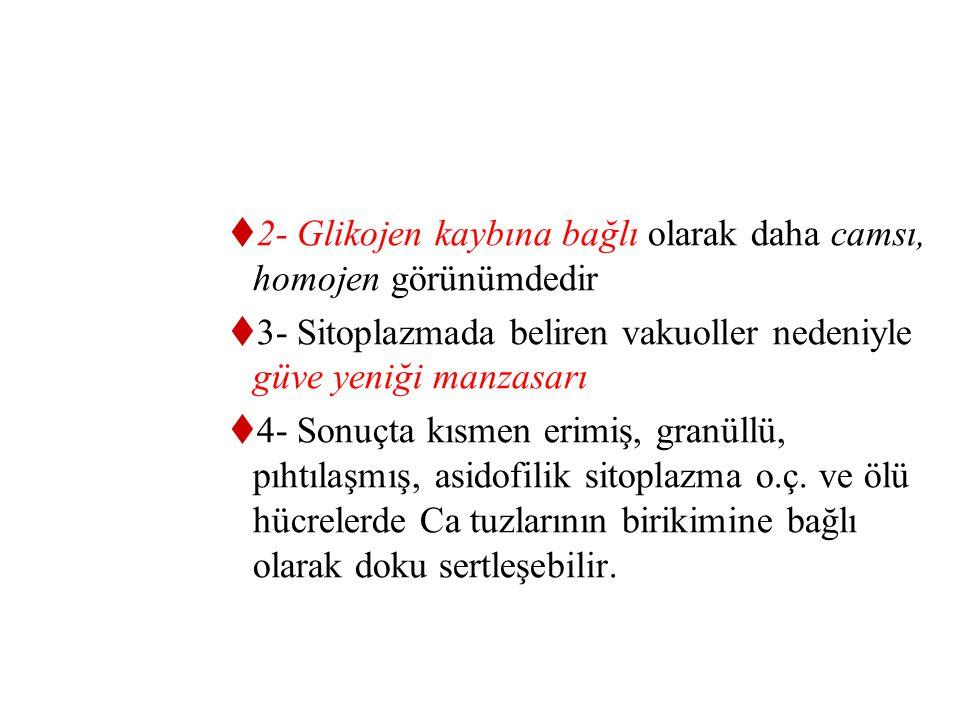 2- Glikojen kaybına bağlı olarak daha camsı, homojen görünümdedir