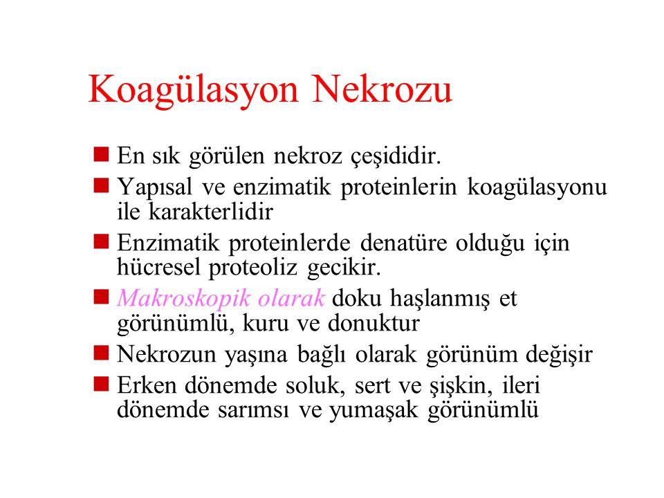 Koagülasyon Nekrozu En sık görülen nekroz çeşididir.