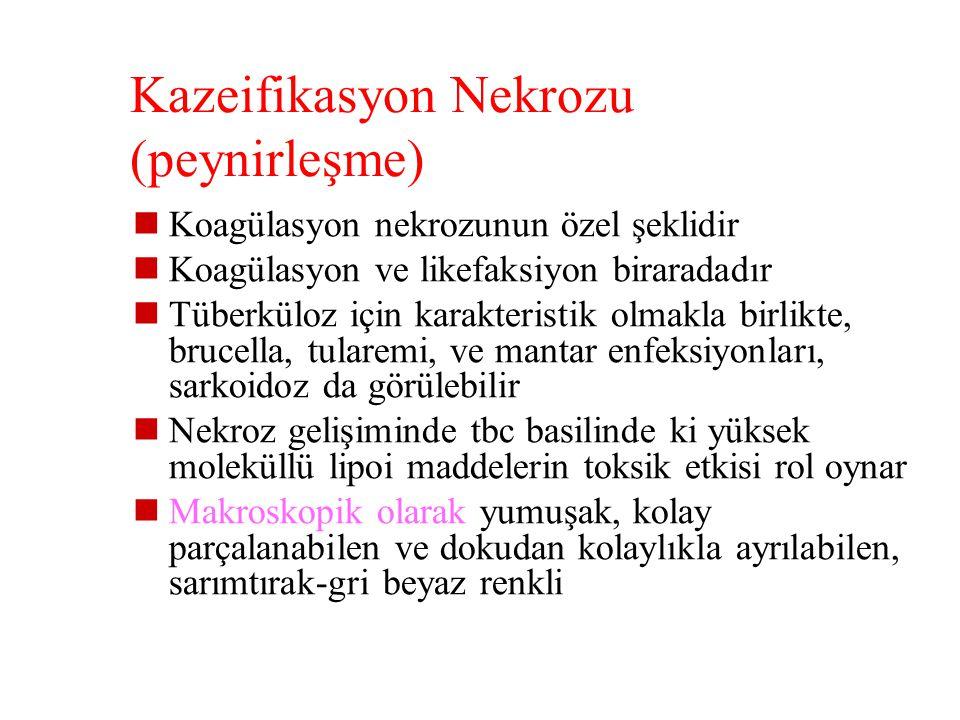 Kazeifikasyon Nekrozu (peynirleşme)