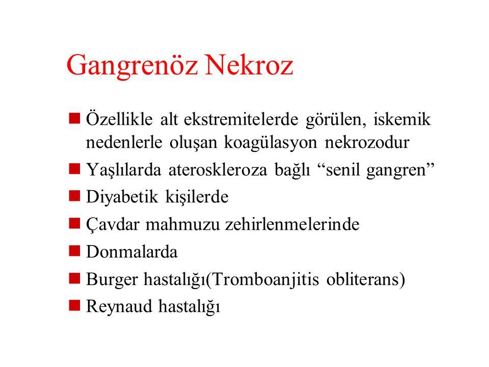 Gangrenöz Nekroz Özellikle alt ekstremitelerde görülen, iskemik nedenlerle oluşan koagülasyon nekrozodur.