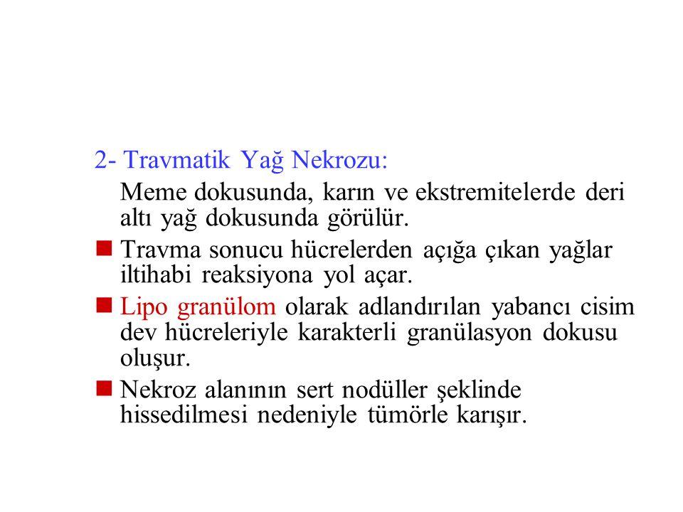 2- Travmatik Yağ Nekrozu: