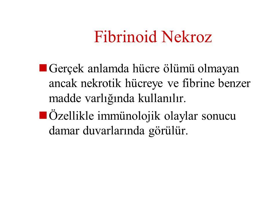 Fibrinoid Nekroz Gerçek anlamda hücre ölümü olmayan ancak nekrotik hücreye ve fibrine benzer madde varlığında kullanılır.