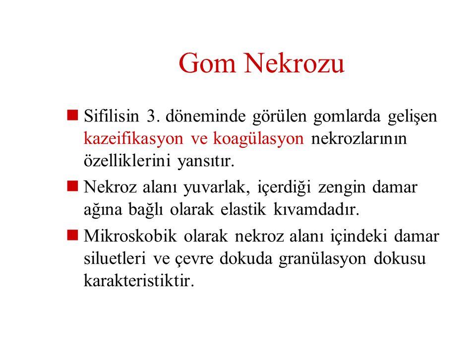 Gom Nekrozu Sifilisin 3. döneminde görülen gomlarda gelişen kazeifikasyon ve koagülasyon nekrozlarının özelliklerini yansıtır.