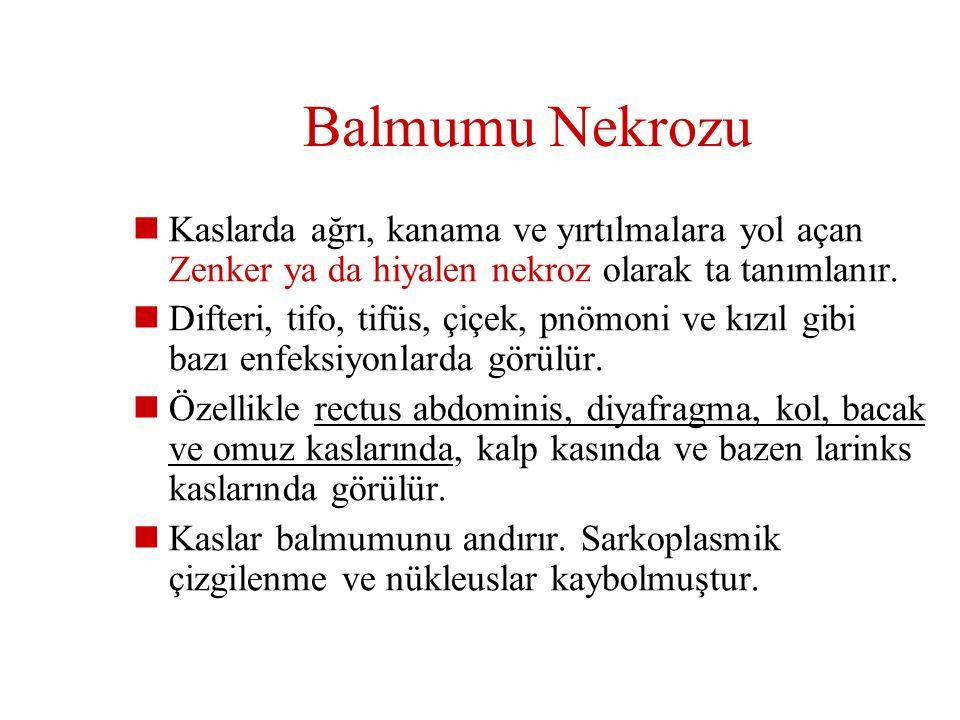 Balmumu Nekrozu Kaslarda ağrı, kanama ve yırtılmalara yol açan Zenker ya da hiyalen nekroz olarak ta tanımlanır.