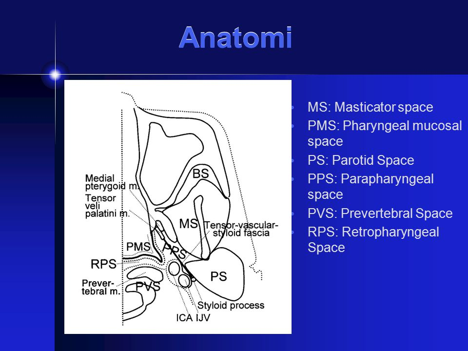 Anatomi MS: Masticator space PMS: Pharyngeal mucosal space