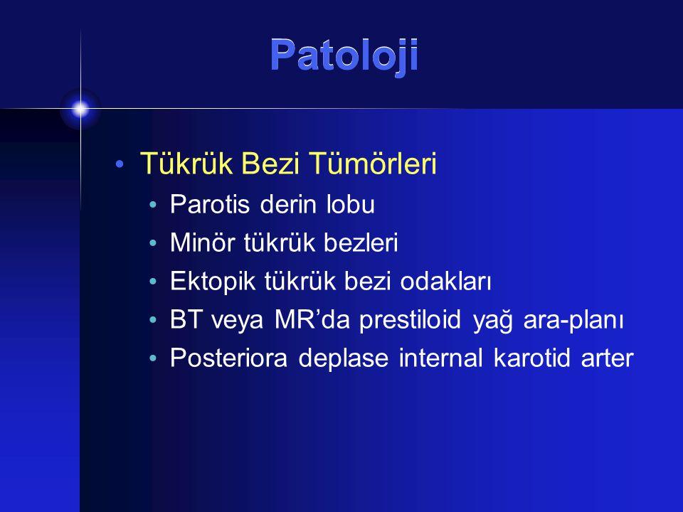 Patoloji Tükrük Bezi Tümörleri Parotis derin lobu Minör tükrük bezleri