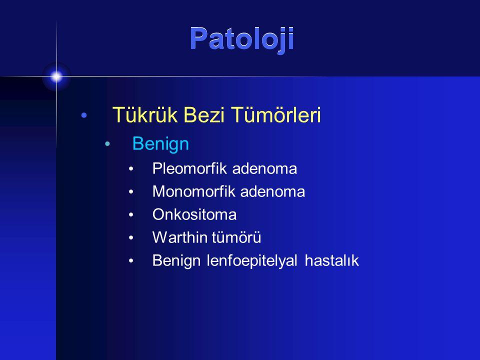 Patoloji Tükrük Bezi Tümörleri Benign Pleomorfik adenoma