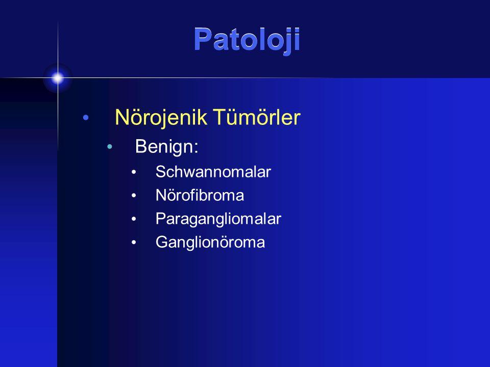 Patoloji Nörojenik Tümörler Benign: Schwannomalar Nörofibroma