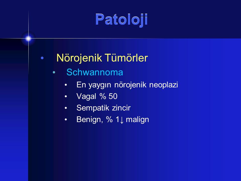 Patoloji Nörojenik Tümörler Schwannoma En yaygın nörojenik neoplazi