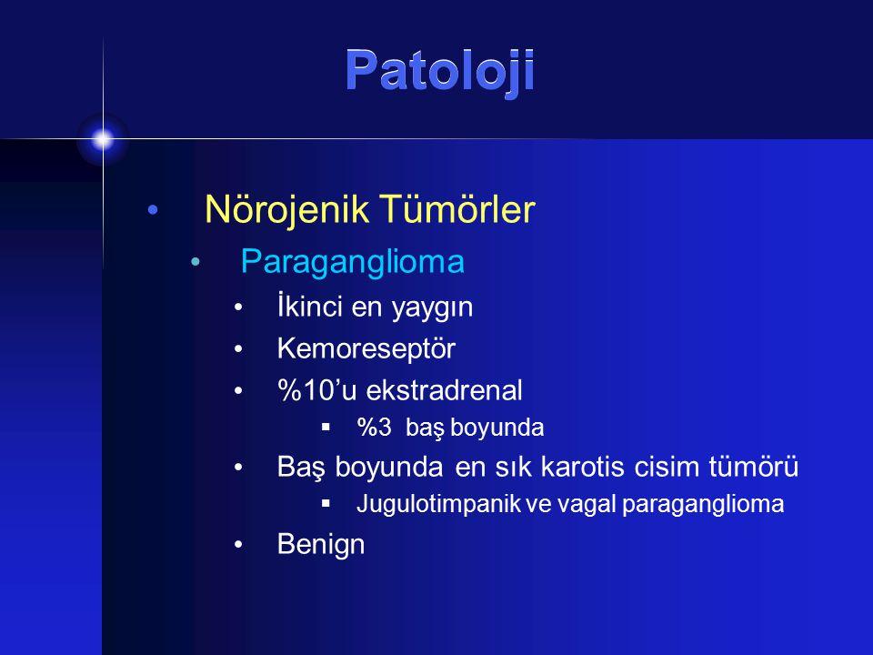 Patoloji Nörojenik Tümörler Paraganglioma İkinci en yaygın