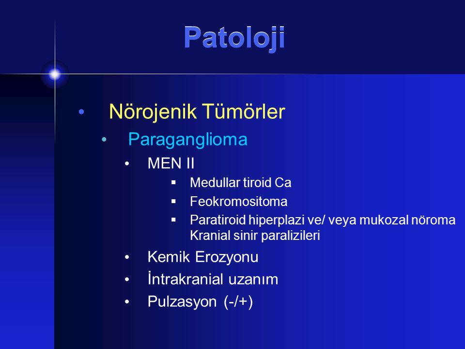 Patoloji Nörojenik Tümörler Paraganglioma MEN II Kemik Erozyonu