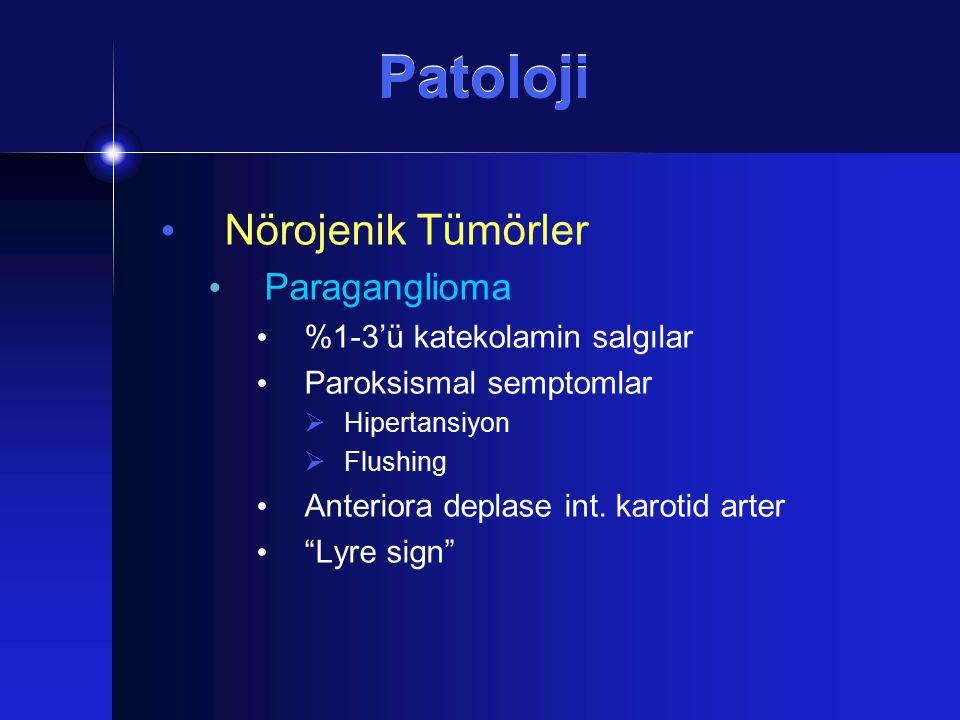 Patoloji Nörojenik Tümörler Paraganglioma %1-3'ü katekolamin salgılar