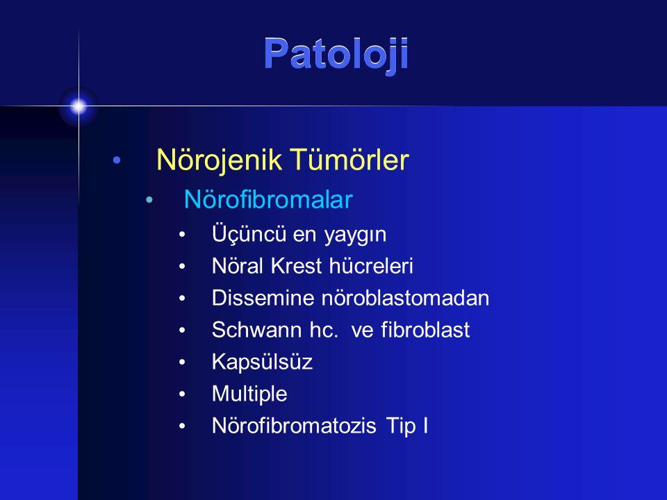 Patoloji Nörojenik Tümörler Nörofibromalar Üçüncü en yaygın