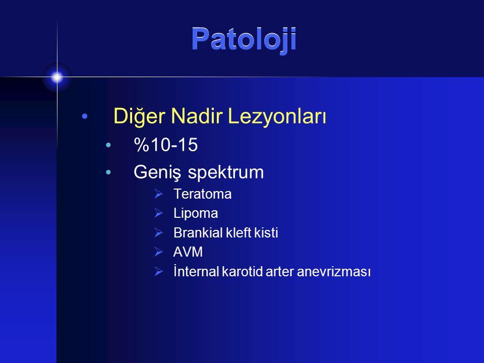 Patoloji Diğer Nadir Lezyonları %10-15 Geniş spektrum Teratoma Lipoma