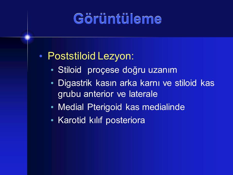 Görüntüleme Poststiloid Lezyon: Stiloid proçese doğru uzanım