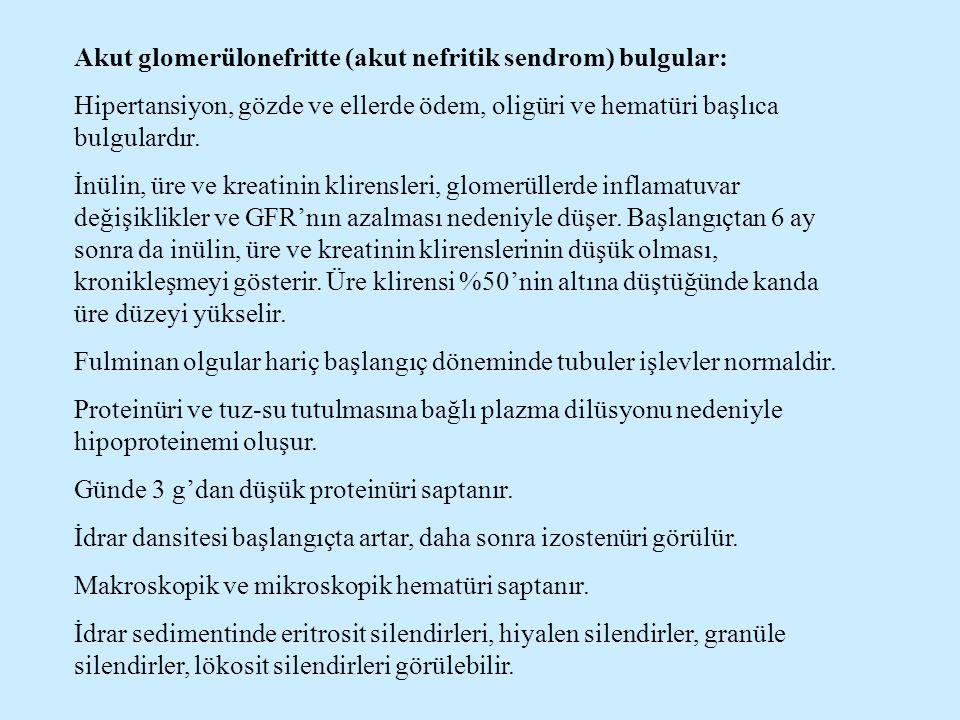 Akut glomerülonefritte (akut nefritik sendrom) bulgular: