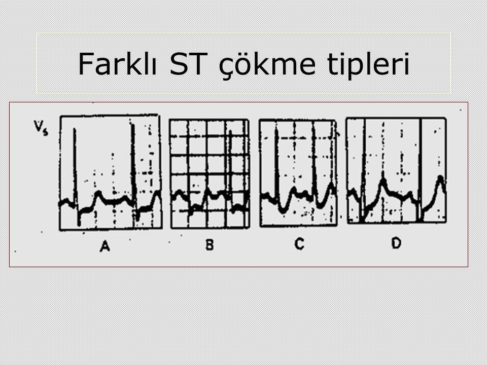 Farklı ST çökme tipleri