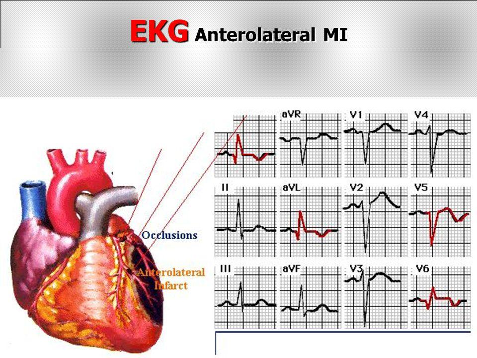 EKG Anterolateral MI