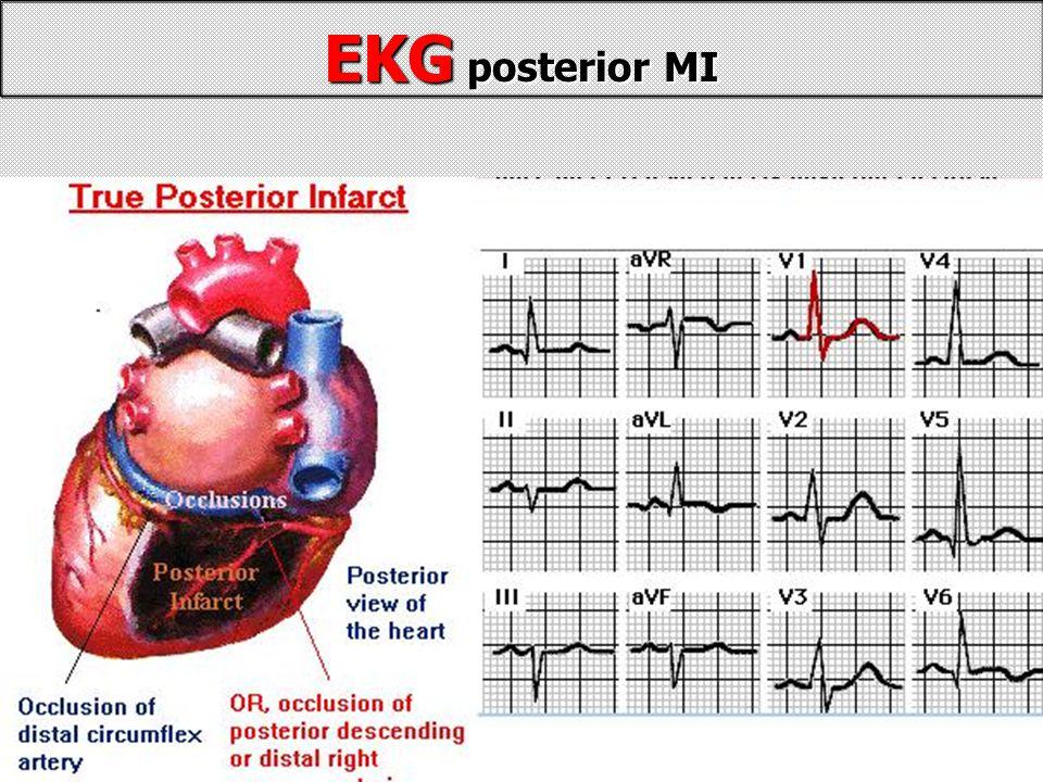 EKG posterior MI