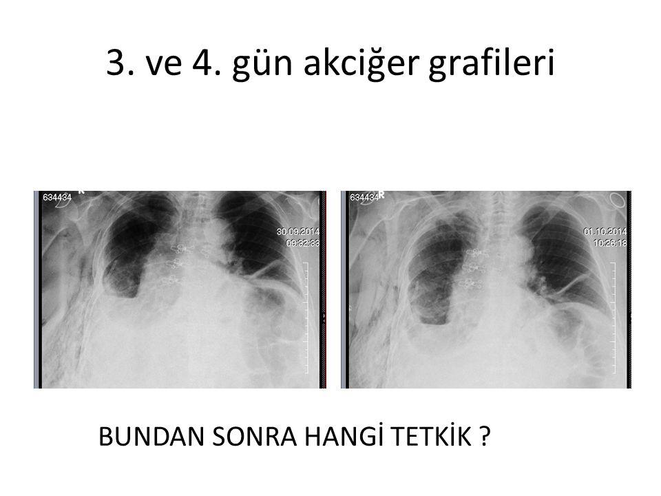 3. ve 4. gün akciğer grafileri