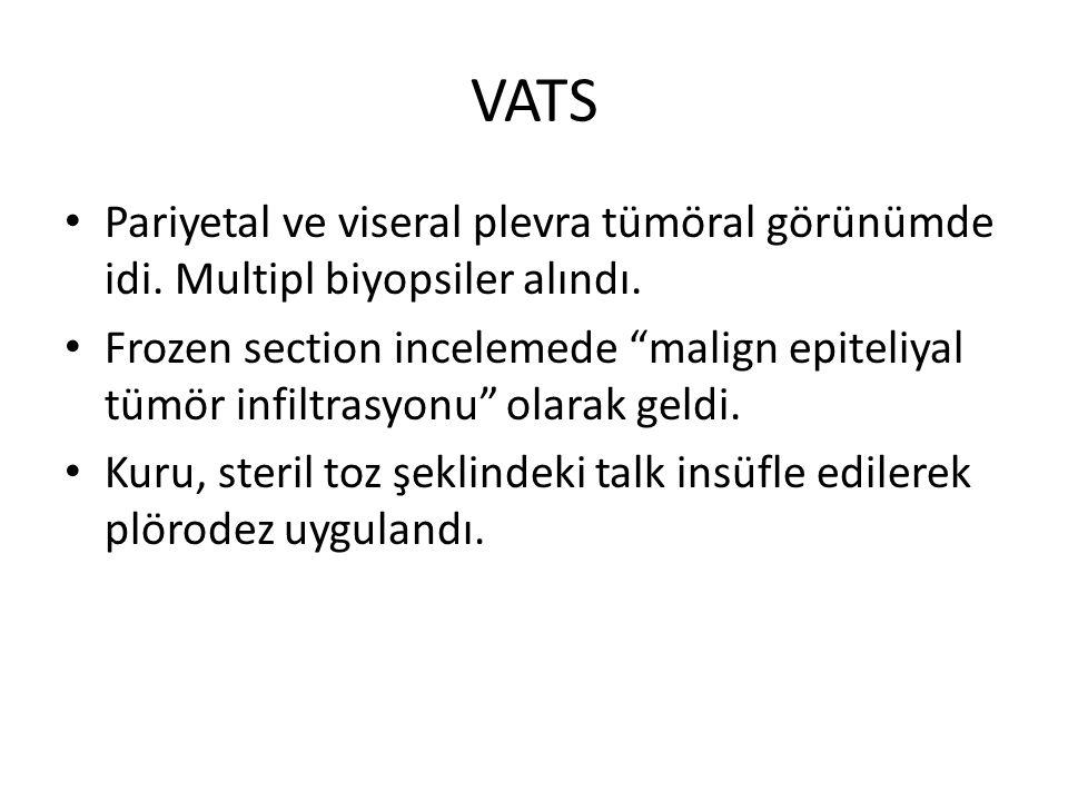 VATS Pariyetal ve viseral plevra tümöral görünümde idi. Multipl biyopsiler alındı.