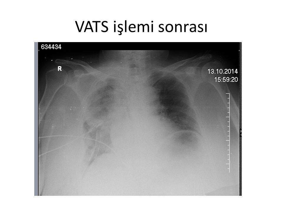 VATS işlemi sonrası