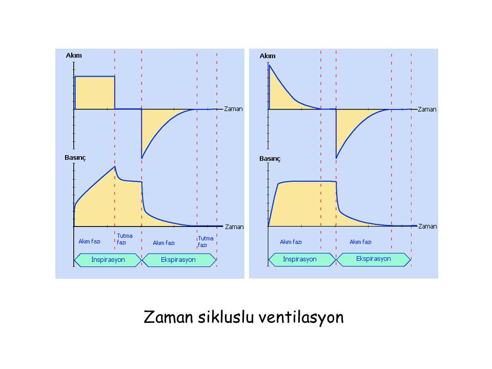 Zaman sikluslu ventilasyon