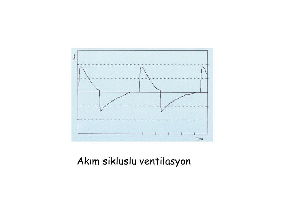 Akım sikluslu ventilasyon