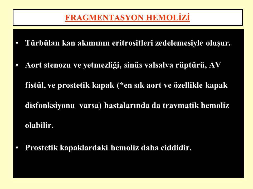 FRAGMENTASYON HEMOLİZİ