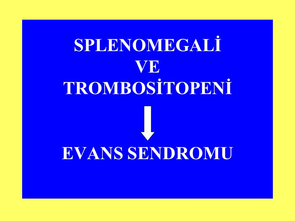 SPLENOMEGALİ VE TROMBOSİTOPENİ EVANS SENDROMU