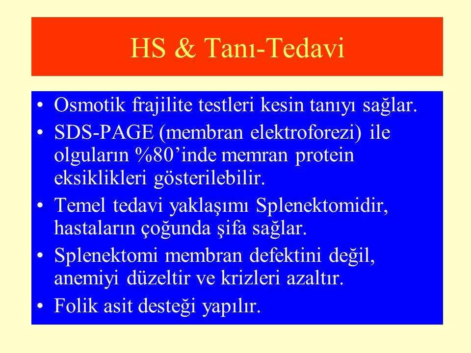 HS & Tanı-Tedavi Osmotik frajilite testleri kesin tanıyı sağlar.