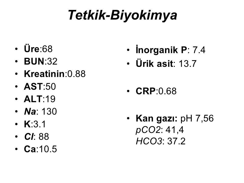 Tetkik-Biyokimya Üre:68 BUN:32 Kreatinin:0.88 AST:50 ALT:19 Na: 130
