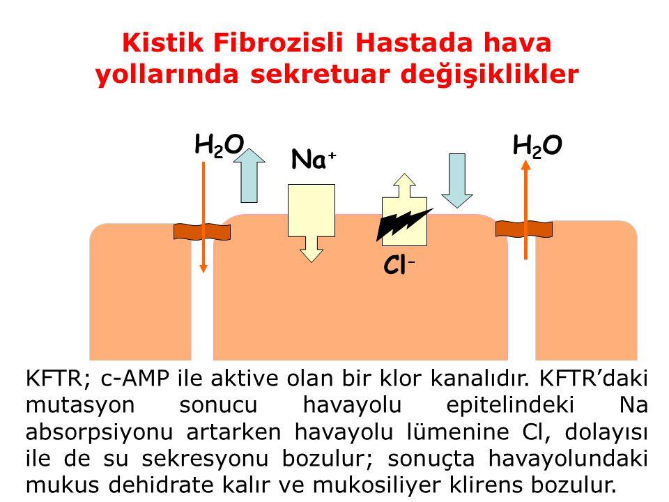 Kistik Fibrozisli Hastada hava yollarında sekretuar değişiklikler