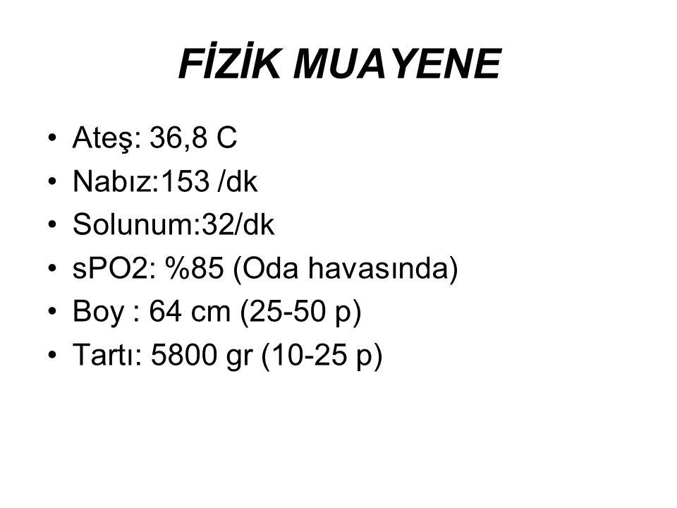 FİZİK MUAYENE Ateş: 36,8 C Nabız:153 /dk Solunum:32/dk