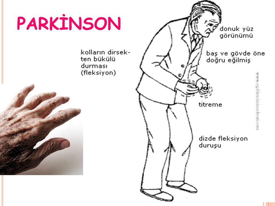 PARKİNSON www.egitimcininadresi.com