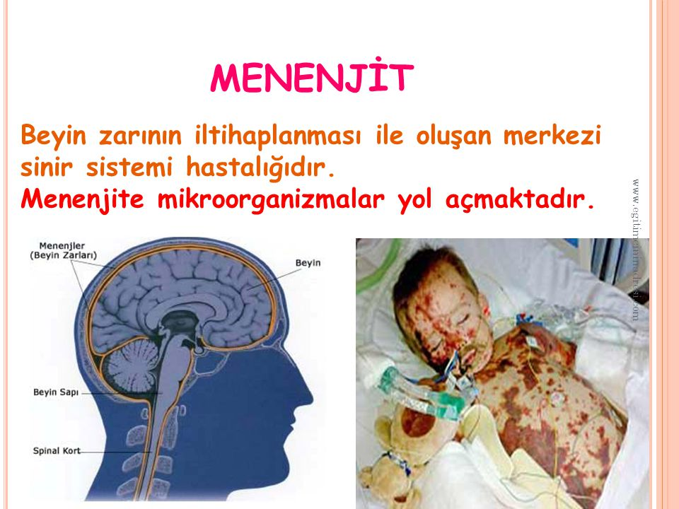 menenjİt Beyin zarının iltihaplanması ile oluşan merkezi sinir sistemi hastalığıdır. Menenjite mikroorganizmalar yol açmaktadır.
