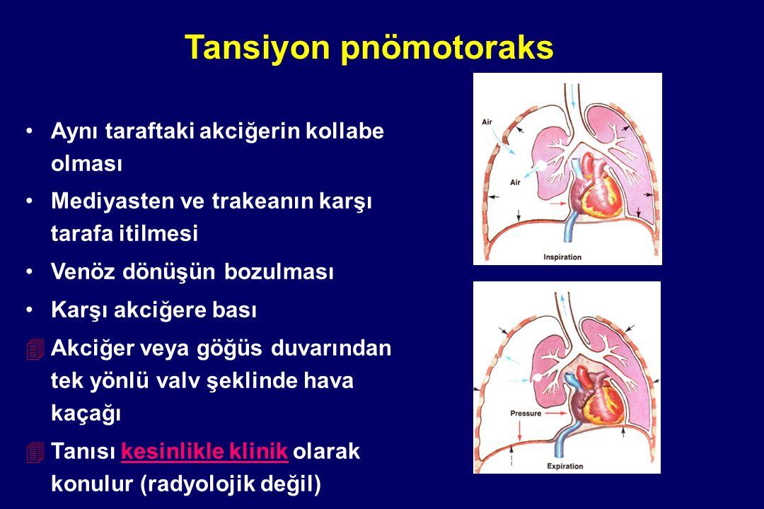 Tansiyon pnömotoraks Aynı taraftaki akciğerin kollabe olması