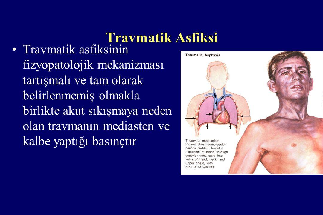 Travmatik Asfiksi