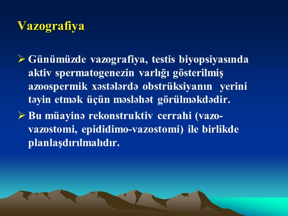 Vazografiya